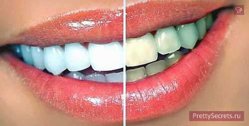 десна отошла от зуба и опухла: почему и что делать